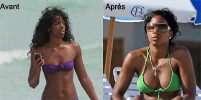 Kelly Rowland reconnait avoir refait ses seins